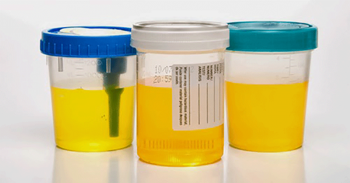 What Your Urine Says About You